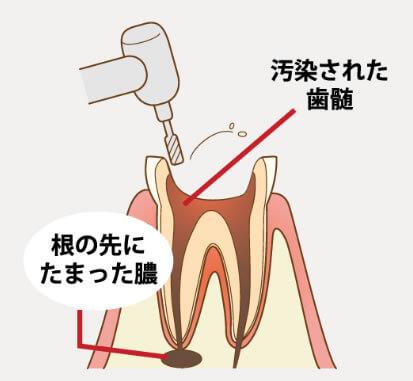 汚染された歯髄や膿を取り出します